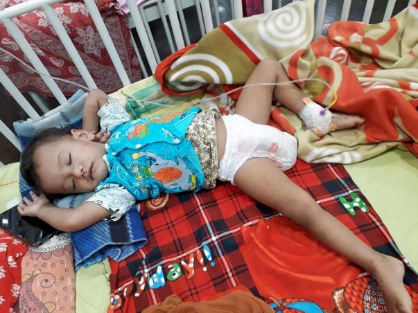 2 Years Old Piku Saha Needs Your Help To Fight Bone Marrow Aplasia
