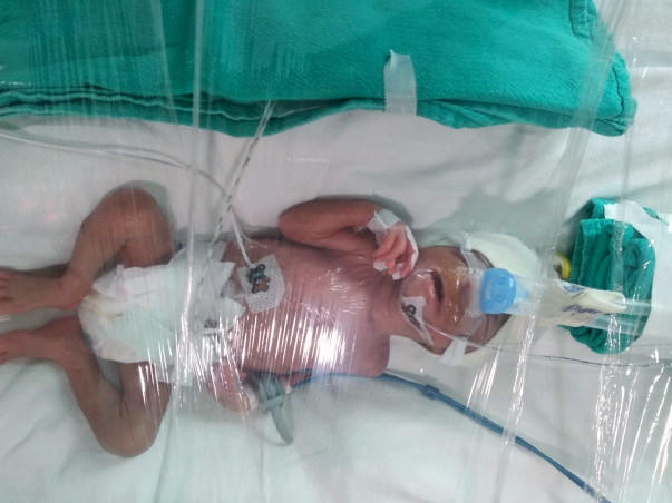 Support Radha's Twin Babies recover for Development & Weight Gain