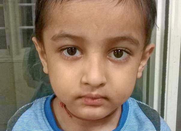 Help Baby Boy Manav Thakor For Bone Marrow Transplant