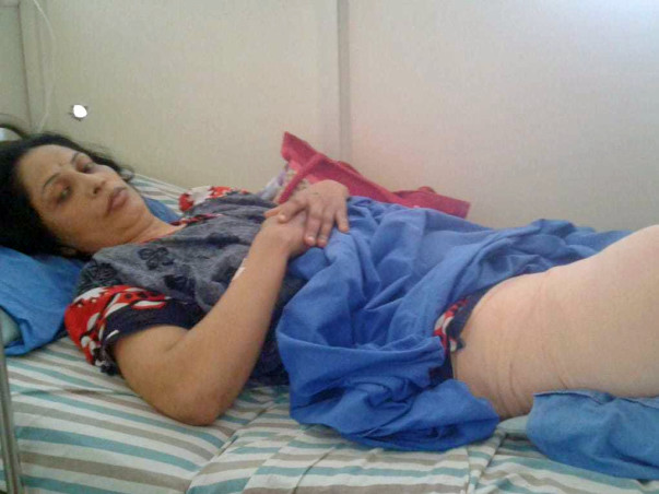 Please Help Geetha Fight Cancer/ Prosthetic legs