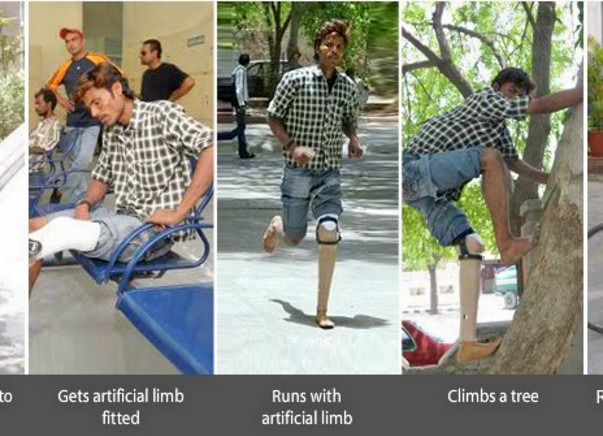 Fundraising to help Jaipur foot provide artificial limbs to 200 amputees. Support my project!