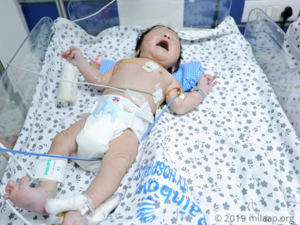 Help Baby of Sirisha Undergo Arterial Switch Operation