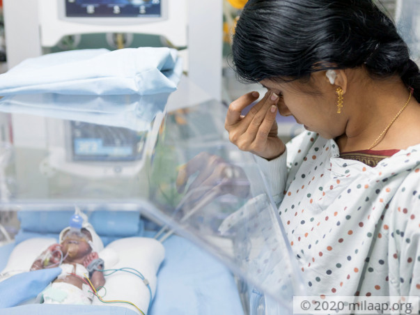 760 gram Baby Needs To Gain Weight To Survive His Premature Birth