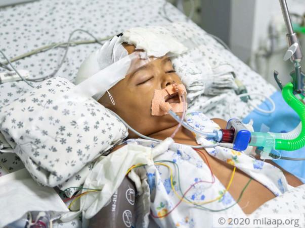 Help Aradhya Undergo An Urgent Decompressive Craniotomy