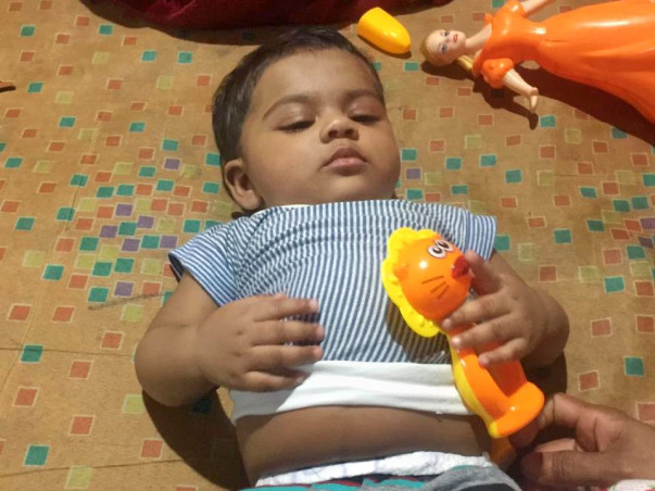 7 Months Old Baby Aira Needs Your Help To Recover From Liver disease