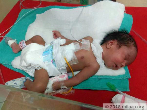 This Newborn Cannot Feed or Poop And Needs Urgent Help
