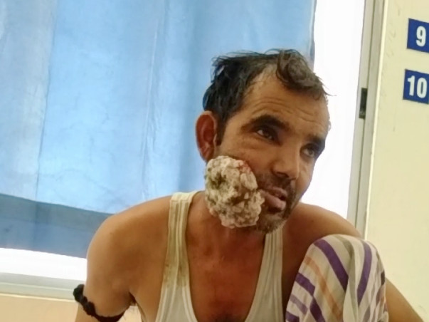 Help Me Undergo Mouth Cancer Treatment.