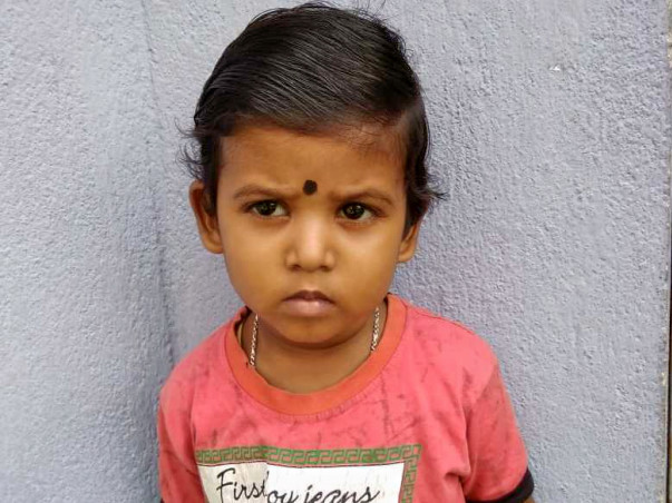 Help Aishnik For Cochlear Implant Surgery