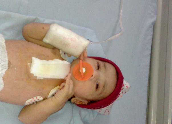 Help for an open heart surgery costs for a 4 days old baby