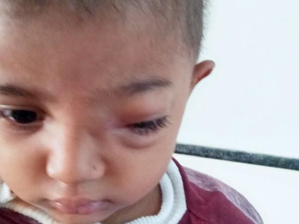 Help My Daughter Haleema Fight Cancer