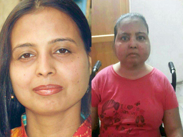 Save My Daughter Neeta From An Aggravating Lupus Disease