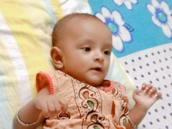 Help Baby Adrish Undergo Open Heart Surgery