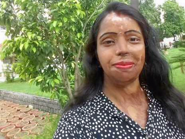 An Event to Create Platform For Acid Attack Women