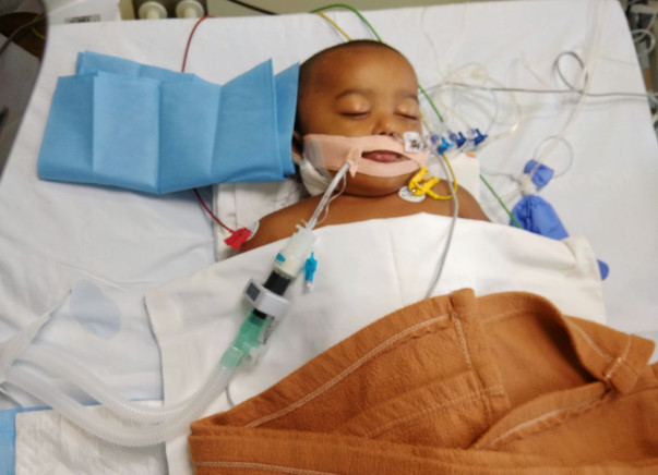 Hilal is little over a year and is suffering from liver failure