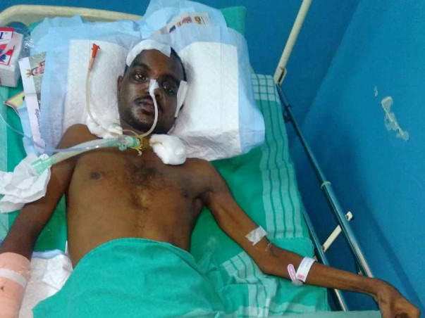 Help Antony Recover from a Fatal Accident