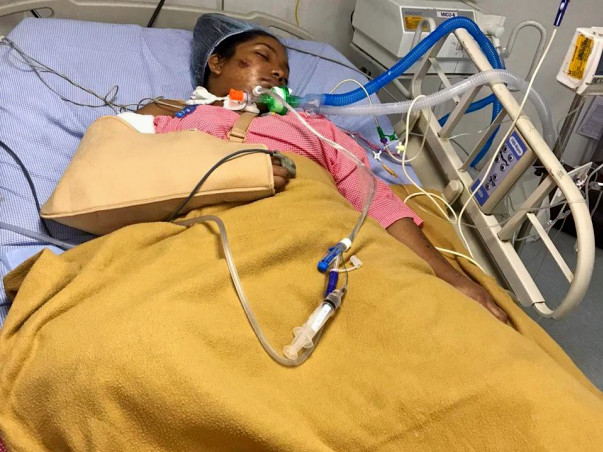 Help My Sister Recover From Accident and Trauma