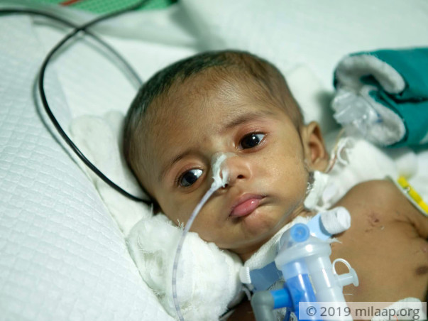 Help Baby of Haritha Rani Undergo VSD Closure