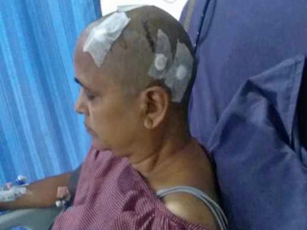 Help My Mom Who Has Tumor In Brain