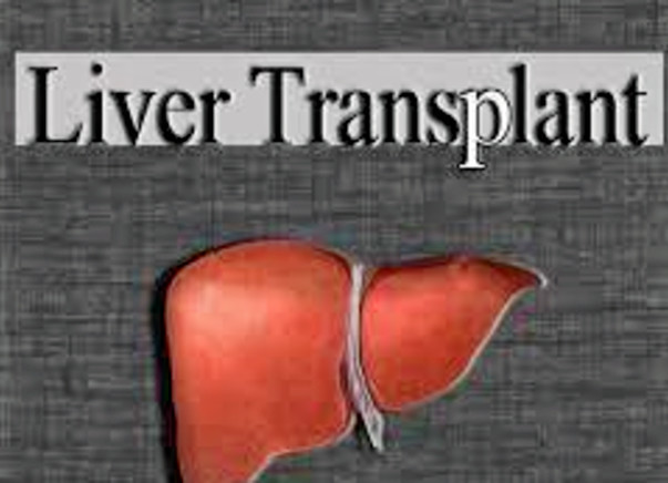 I am fundraising to husband's Liver Transplant