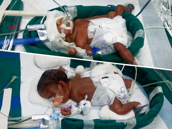 Help Premature New Born Twins To Survive