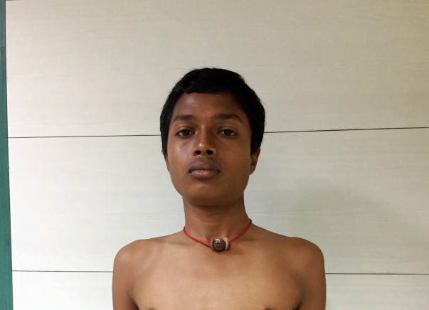Help 18 year Old Harshavarthan Undergo Spinal Deformity Treatment