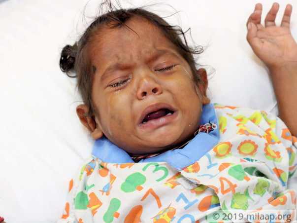 Every Breath Is A Struggle For This Baby Who Needs Open Heart Surgery