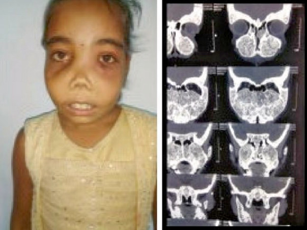 Save 11-Year-Old Girl From Fibrous Dysplasia
