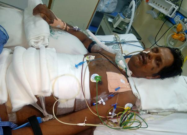 Help Balamurugan To Fight Severe Acute Pancreatitis