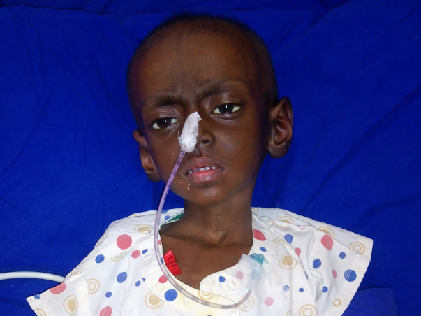 Help Dhruvankur for bone marrow transfer treatment