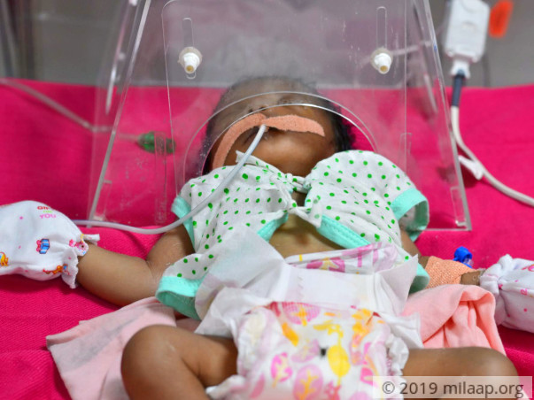 Help Baby Of Gangeswari Undergo Open Heart Surgery