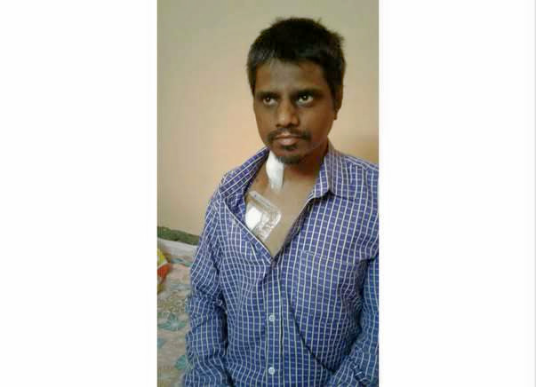 Help Raise Fund For Aman's Kidney Transplantation.