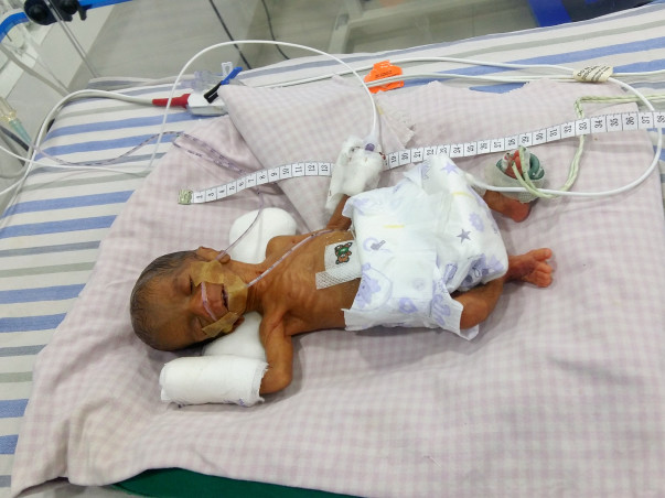 Father of a Premature Baby Sold All He Had To Try And Save His Baby
