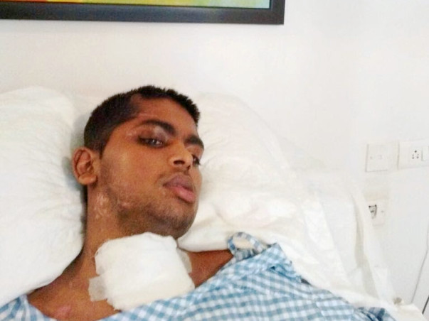 Emergency need for cosmetic bone surgery - SAVE HARI'S LIFE