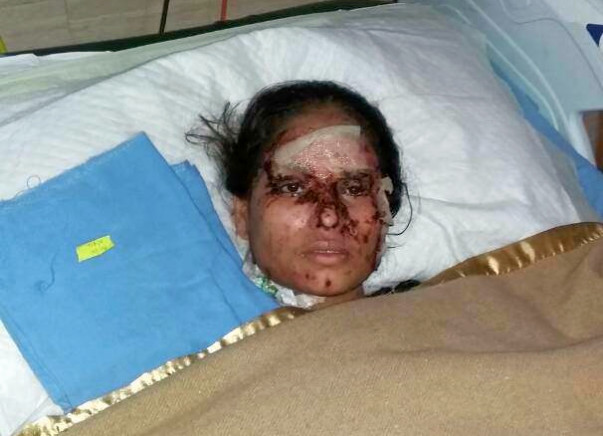 In Memory of Salma, Saving Relief Fund For Acute Acid Attack Cases