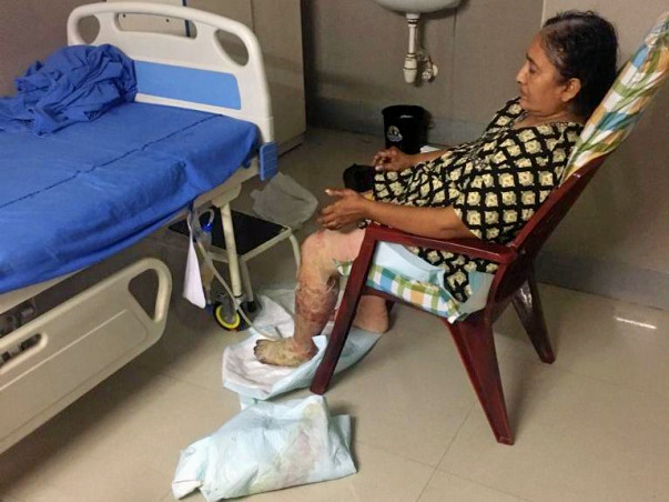 Support K Sathyavathi Recover From Gas Cylinder Blast Accident