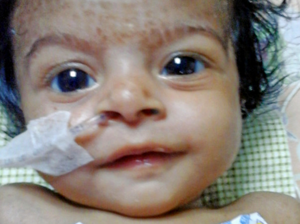 Seeking Support To Save My 3-Month-Old Daughter