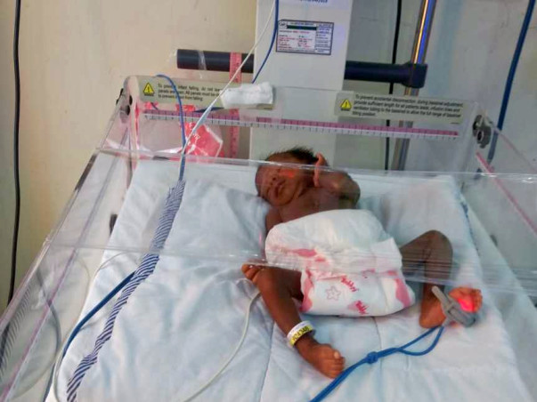 Help For Premature Twins of Sayantani.