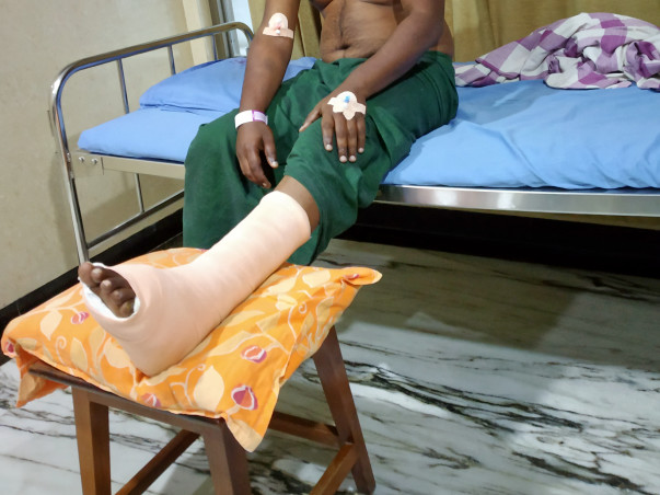 My Brother undegoes an operation in his leg due to an accident.