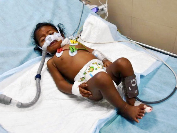 Help 11-month-old Kabelish Fight Pneumonia And Breathe Again
