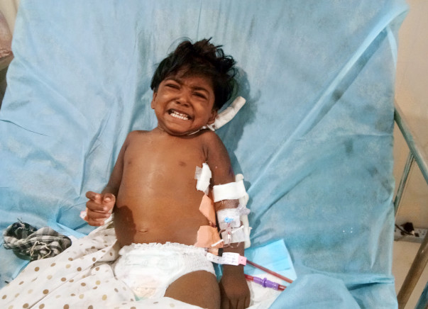Help 2-year-old Aaradhana recover from Kidney Failure