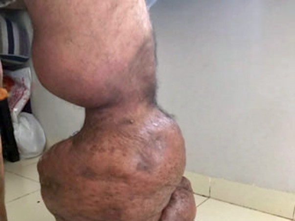 Help Chetan To Recover From Elephant Leg Disease