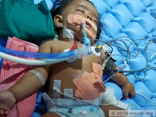 Single Mother Sandhya Pleads For Help To Save Her Baby Boy's Life