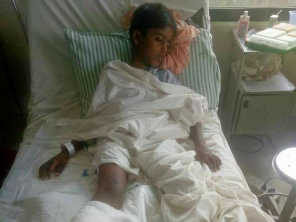 surgery for Jashwant