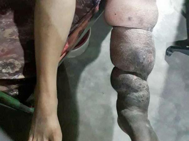Help Sagayamary Recover From A Swollen Leg
