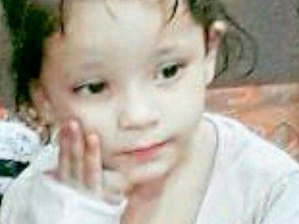 4-Year-Old Who Sweats Blood All Over Her Body Needs Urgent Help