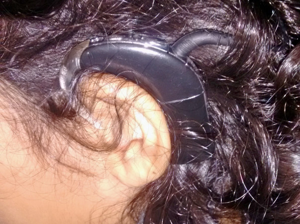 Help To Keep My Daughter Samara Hear