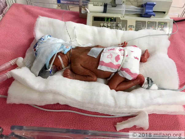 Help Shamika and Amogh's prematurely born baby recover soon