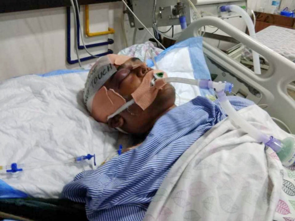 Help Me Undergo A Brain Surgery