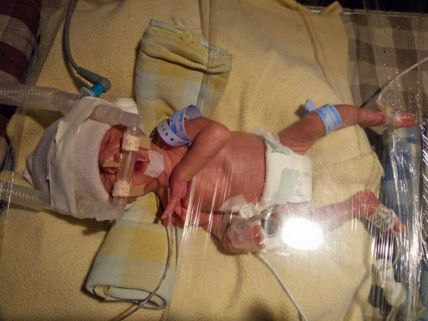 Help My Premature Twin Babies