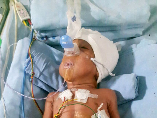 Save mokshith premature baby